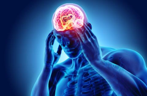 Kuidas ma migreenidele vaatama trenni teen